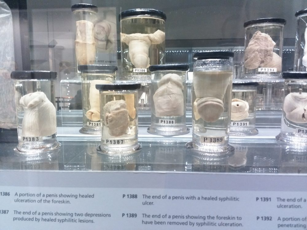 Hunterian Museum in London